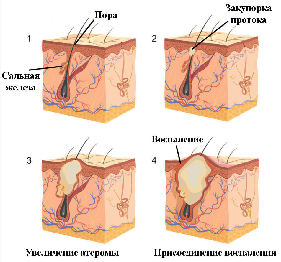 Атеромы