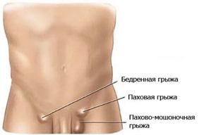 Лечение грыж в Москве