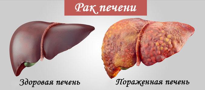 Злокачественные опухоли печени (рак печени)