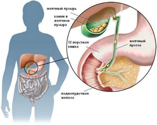 Желчнокаменная болезнь (ЖКБ)